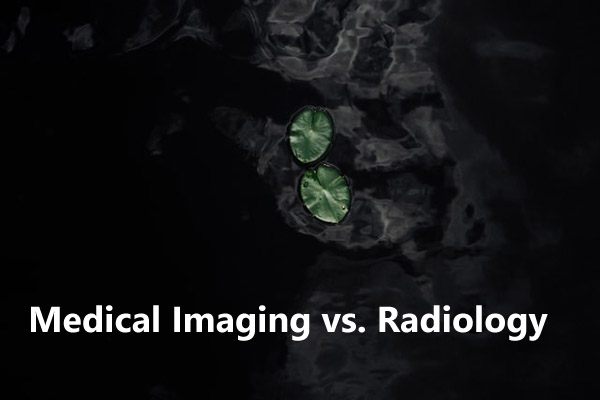 CT scan image
